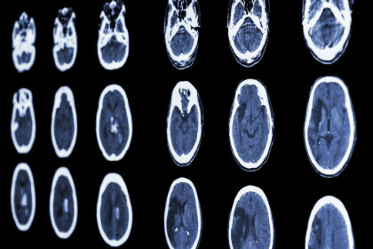 Stroke Risk and Death Rates Fall Over Past Two Decades